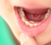 口腔粘膜の病気について
