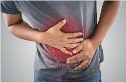 大腸癌について